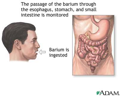 barium-1