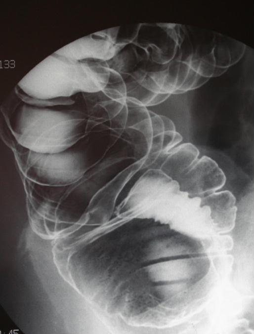 bariumenema